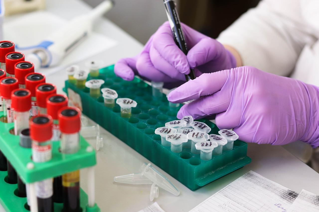 antibodies study